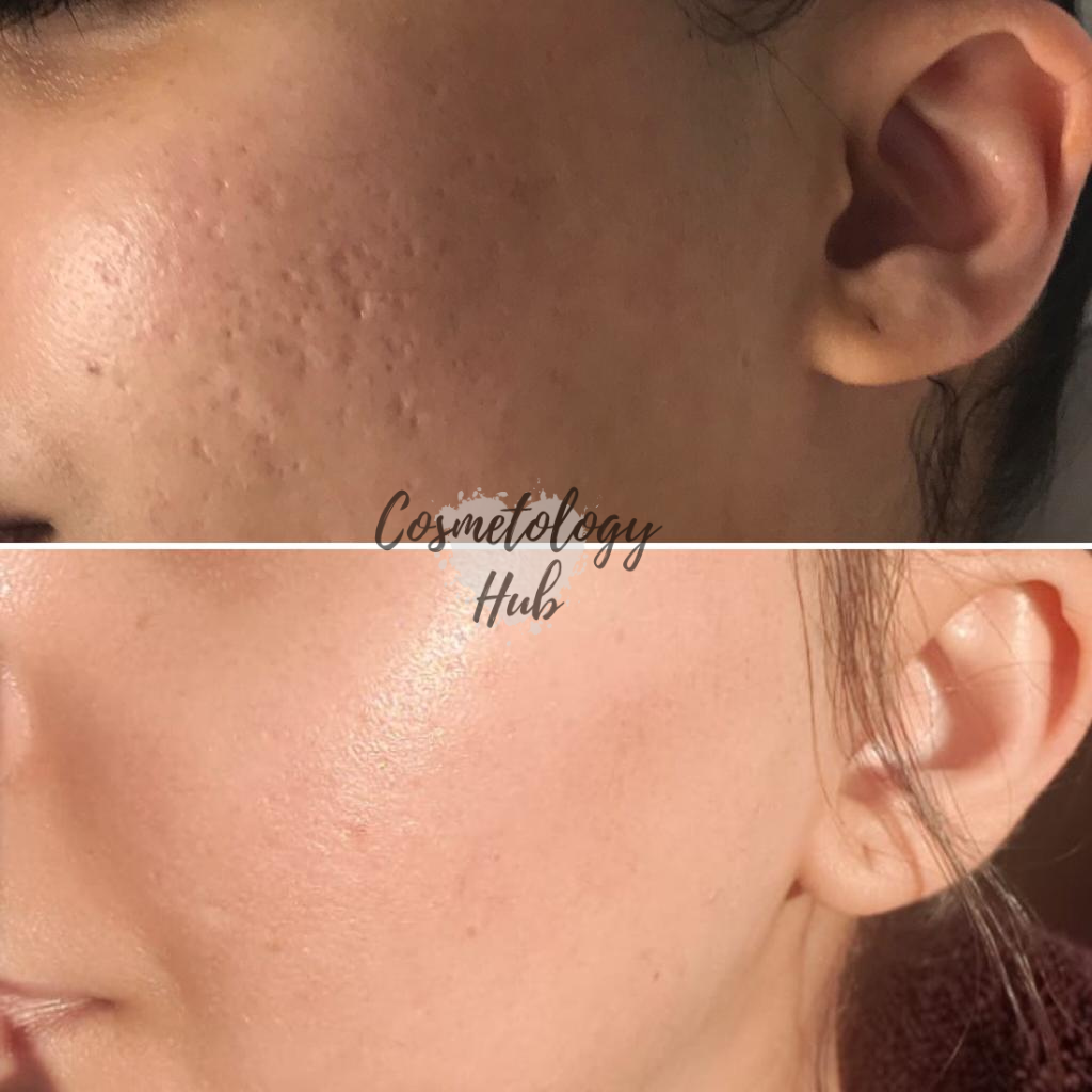 Before and After of Acne Treatment with one Microneedling treatment at Cosmetology Hub, Leicestershire